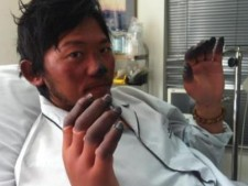 Nobukazu Kuriki in Kathmandu Hospital (courtesy of Nobukazu Kuriki)