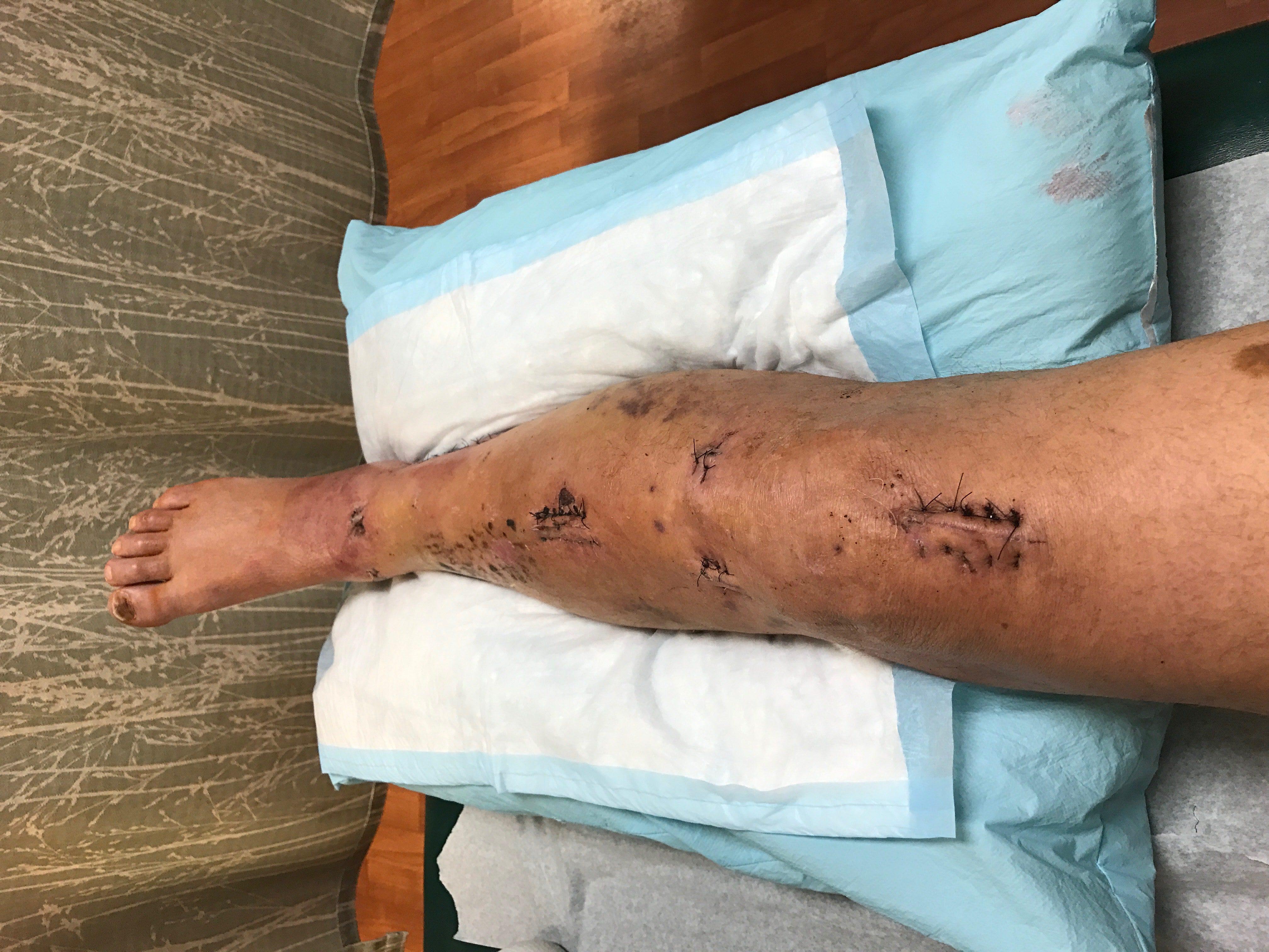Alan leg with sutures