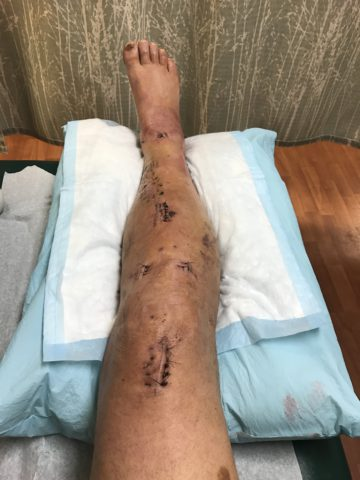 leg 2 weeks after Twin Sisters Fall