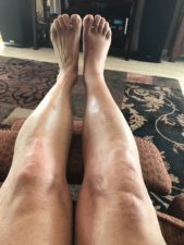 legs 8 weeks after Twin Sisters Fall