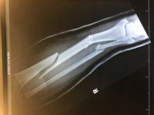Broken Tibia X Ray