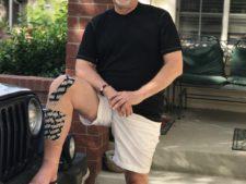Broken Leg Update: Five Months Out
